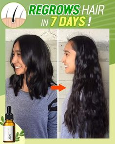 Stop hiding the hair thinning problem and start fixing it! Gro+ Hair Activating Serum regrows thicker and fuller hair in as little as 7 days! The plant-based formula penetrates deep into the scalp to stimulate blood circulation and growth of hair follicles. Visibly increase hair density by up to 82%! Curly Hair Styles, Natural Hair Styles, Twisted Hair, Regrow Hair, Hair Growth Treatment, Hair Remedies, Hair Serum, Natural Hair Growth, Hair Health