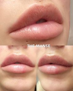 Dr Naomicosmetic Doctor On Keyhole Lips By Themanseclinic Lipfillers Fillers Injectables Keyholepout Lip Plastic Surgery, Lip Surgery, Lip Injections Juvederm, Botox Lips, Dermal Fillers, Lip Fillers, Botox Fillers, Fillers For Face, Lips Painting