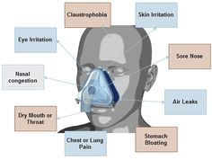 How low can sleep apnea oxygen level get before it is a concern? What is the sleep apnea effect on blood oxygen level? How can you monitor your oxygen saturation levels? Cure For Sleep Apnea, Sleep Apnea Remedies, Sleep Apnoea, Good Sleep, Circadian Rhythm Sleep Disorder, Get Rid Of Anxiety, Insomnia Help, Home Remedies For Snoring, How To Stop Snoring