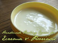 * Lovely Greens *: Handmade Healing Cream for Eczema and Psoriasis