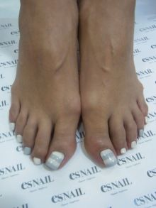 White and baby blue striped toenails