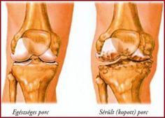 térdízület készítmények polyarthritis)