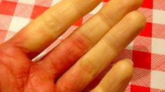 5 Bizarre Facts Of Life For People With Raynaud's Disease