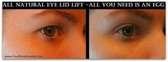 natural remedy drooping eyelids