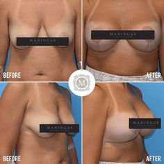 Implants lifts information on breast and
