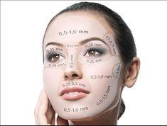 mikrojehlickovani dermapen hloubka vpichu - Another! Cosmetic Treatments, Skin Treatments, Dermapen Microneedling, Dermaroller, Skin Needling, Facial Anatomy, Facial Aesthetics, Chemical Peel, Facial Treatment