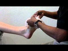 SpiderTech taping for bunion (hallux abducto valgus) deformity. - YouTube
