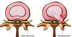A hérnia de disco é uma condição relativamente comum e pode ocorrer em toda a coluna, porém os locais mais comuns são a coluna lombar e cervical devido à maior mobilidade nessas regiões.