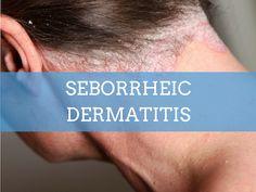 Seborrheic dermatitis is seasonal disease with skin rashes and scaling which can ooze liquid. Consult a dermatologist for seborrheic dermatitis treatment. Back Acne Treatment, Skin Treatments, Fungal Rash, Antifungal Medication, Skin Specialist, Acne Facial, Skin Rash, Skin Problems