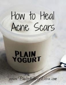 Brakely.Com: Home Remedies For Acne Scar
