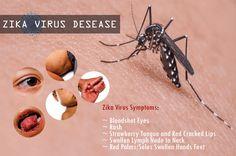 Zika Virus (ZIKV) Disease | Zika Fever Symptoms Treatment Facts http://danihealthbook.com/zika-virus-desease/