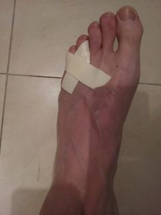How To Splint, Tape and Heal A Broken Pinkie Toe | RyanHupfer.com