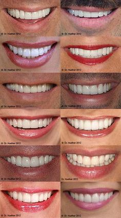 porcelain veneers orange county shapes