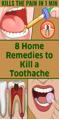 There is nothing worse than toothache at night and here how to stop tooth pain fast and some of the best natural and home remedies to relieve toothache. What causes toothache? Health Remedies, Herbal Remedies, Home Remedies, Natural Remedies, Oral Health, Health And Wellness, Health Tips, Health Care, Teeth Health