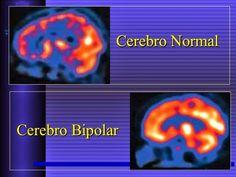 cérebro normal x cérebro bipolar