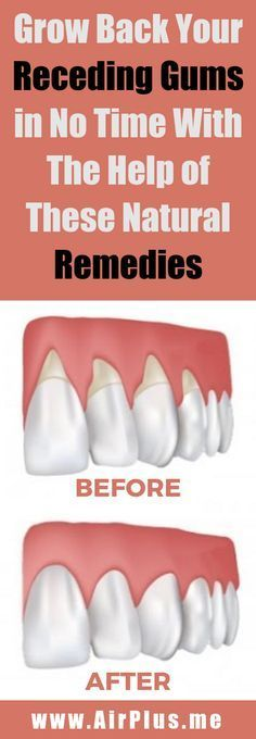 Grow Back Your Receding Gums in No Time with The Help of These Natural Remedies – Page 6 – Airplus