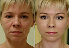 No Botox, 15 anni in meno garantiti Botox Facial, Fitness Goals, Health Fitness, What Is Health, Lotion Tonique, Les Rides, Love Your Skin, Warts, Coping Skills