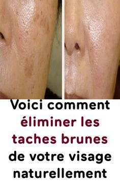 Voici comment éliminer les taches brunes de votre visage naturellement Les Rides, Exfoliant, Voici, Glycolic Acid, Dead Skin