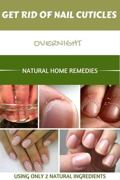 Forget About Nail Cuticles Using This Two Natural Ingredients