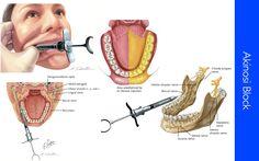 mandibular-nerves-block-5.jpg 1,680×1,050 pixels