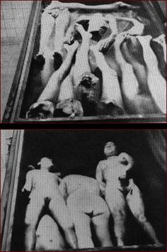Nazis at Ravensbruck concentration camp amputated limbs from prisoners in useless attempts to transplant them onto other inmates. Many of the victims perished as a result.