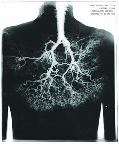 I think its amazing how the human respiratory system looks so much like a tree