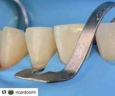 #rubberdamology @ricardoomi Protocolos de odontología adhesivaOMI estudio dental