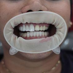 >Anímate a cambiar tu diseño en resina por lentes en E-Max. Agenda tu cita 3600075 - (57)3043459583.  Aceptamos todas las tarjetas  #Visa #SonrisaAdvanced #mastercard #bestofProsth #dental #dentistry #dentallab #cosmeticdentistry #implants #implantes  #odontologia #odontologiaestetica #dentist #prosthodontist  #restorativedentistry #odontolove #dentalschool  #emax #cosmeticdentist #odontologo  #dentalassistant  #dentalphotography #stomatology #dentalcare  #implantologia. #periodontics…