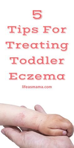 Toddlers with eczema will break any moms heart.  If you're looking for some simple ways to beat and prevent outbreaks, check out this simple article.
