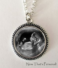 Custom Sonogram Keepsake Necklace Your baby's sonogram photo on a necklace by Now That's Personal, $16.95