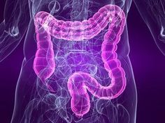 What is the Leaky Gut Syndrome? Not many physicians know about it but leaky gut syndrome is not a diagnosis in itself. Leaky Gut, Gut Health, Health And Nutrition, Colon Health, Mental Health, Peugeot Rcz, Treating Ibs, Ibs Symptoms, Inflammatory Bowel Disease Symptoms