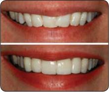 Before & after veneers.  Veneers are thin shells of porcelain that are bonded to the front of your teeth. They can be a great choice to improve teeth that are stained, crooked, worn or have gaps. #Tampa #Dentist SmileTampa.net