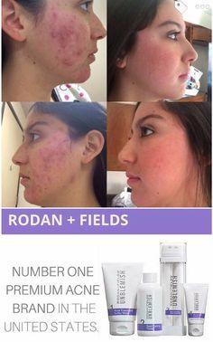 #1 premium acne brand in the U.S. I'm not surprised at all, UNBLEMISH is totally legit!