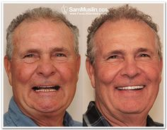 Grumpy old men - treating bite collapse with Ant-Aging Face Lift Dentistry