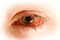 Purpura pigmentaria remedios caseros