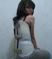 Image result for full body brace