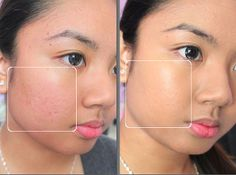 http://www.clearpores.com/ct/259952 Why Does ClearPores Beat Out Other Acne Creams on the Market?