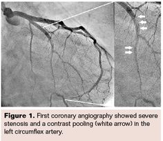 Complete Healing of Spontaneous Coronary Artery Dissection: Serial Follow-up…