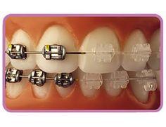 Clear porcelain braces Vs metal braces (scheduled via http://www.tailwindapp.com?utm_source=pinterest&utm_medium=twpin&utm_content=post12226282&utm_campaign=scheduler_attribution)