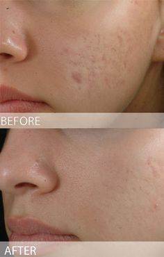 Have you ever heard of Micro-Needling Renewal? www.simplicitylaser.com