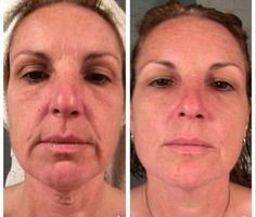 Love the neck and between the eyebrows...NERIUM RESULTS