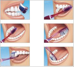 The Bass tooth brushing technique concentrates on cleaning dental plaque around the gum line. It is also known as the sulcus cleaning method Dental Hygiene, Dental Care, Oral Health, Dental Health, Dental Photography, Dental World, Dental Posters, Brush Type, Teeth Cleaning
