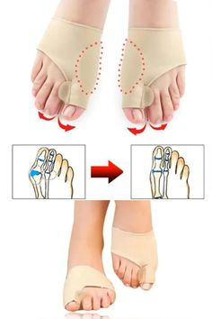 Bunion Corrector Brace For Men & Women - Real Time - Diet, Exercise, Fitness, Finance You for Healthy articles ideas Health And Beauty Tips, Health Tips, Health And Wellness, Health Fitness, Bunion Remedies, Bunion Shoes, Yoga Training, Natural Health Remedies, Moda Fitness
