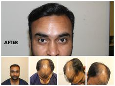 Amit Mishra Hair Transplant - Lots of Celebrities like Amit Mishra has done successful hair transplant, Hair implant cosmetic surgery. You can also get your hair back and it can become from bald to beautiful.  At Dezire Clinic we provide Hair Transplant at very low cost with 100% results. You can consult your case with our experts at Pune, Delhi, Gurgaon, Bangalore and Channai. Call us on +91 9222122122