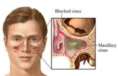 Blocked Sinus - 4 Ways To Clear It Naturally