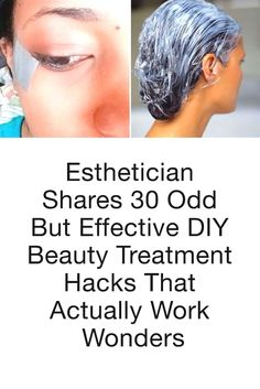 Esthetician Shares 30 Odd But Effective DIY Beauty Treatment Hacks That Actually Work Wonders – Beauty Make up Styles Diy Beauty Hacks, Beauty Hacks For Teens, Beauty Ideas, Diy Hacks, Beauty Tutorials, Back Acne Treatment, Natural Acne Treatment, Kate Middleton, Cabelo Ombre Hair