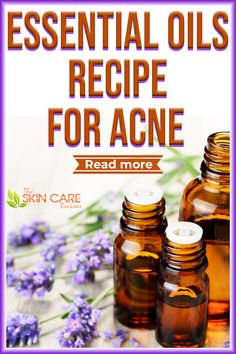 Essential oils are vital for many skincare products. Here you can check out a great essential oil recipe to treat acne. Read more about acne scars at theskincarereviews.com #acne #acnescars #acnemarks Essential Oils For Headaches, Essential Oils For Sleep, Best Acne Products, Skin Products, Natural Acne Remedies, Clear Skin Tips, Oil Recipe, Acne Scars, Good Skin