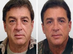 Facial Yoga Regimens Can Keep Women And Men Looking Younger Look At These Effective Anti