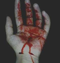 """((Open with Adam)) I look at my blood covered hand and then at the-once again-open wound on my leg. """"Dammit..."""" I mumble. I try to keep pressure on it, not noticing when you walk in."""