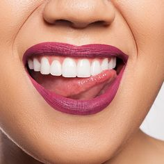 Want a brilliant matte finish to your luscious lips? Stila Cosmetics' Stay All Day Liquid Lip Color is the one for you! Dental Hygiene Student, Beautiful Teeth, Perfect Teeth, Smile Design, Smile Teeth, Lip Shapes, Best Teeth Whitening, Lipstick Shades, Lip Art